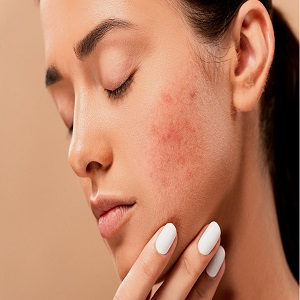 Does Skin Rejuvenation Work In All Areas Of The Skin?